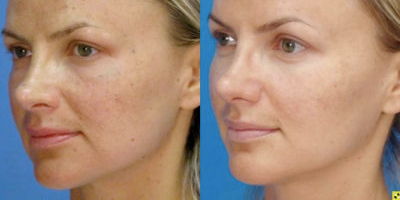 MicroLaserPeel® | Skin & Allergy Center in Tennessee